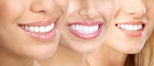 dental-image-2